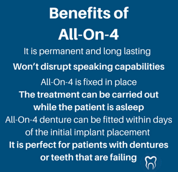 all-on-4 implants