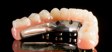 dental implant bridge cost