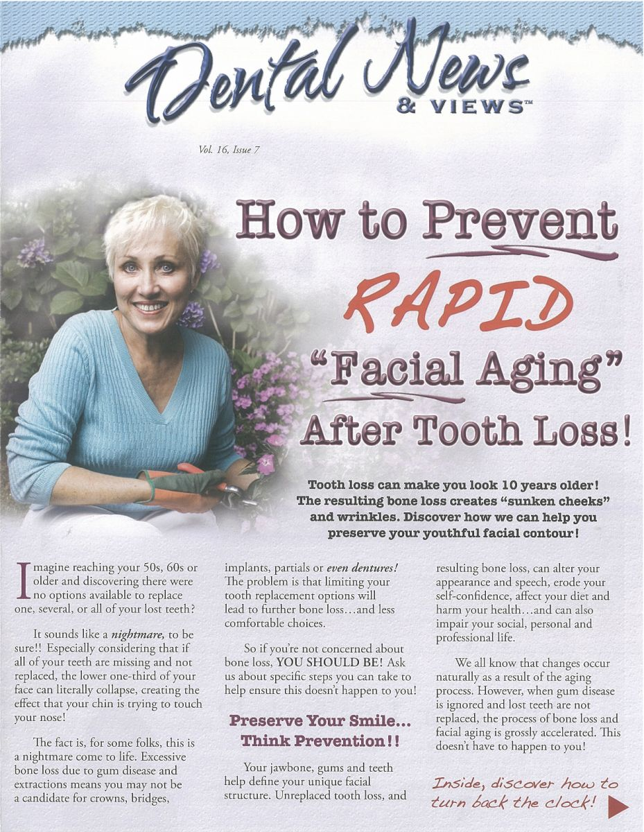 facial aging tooth loss