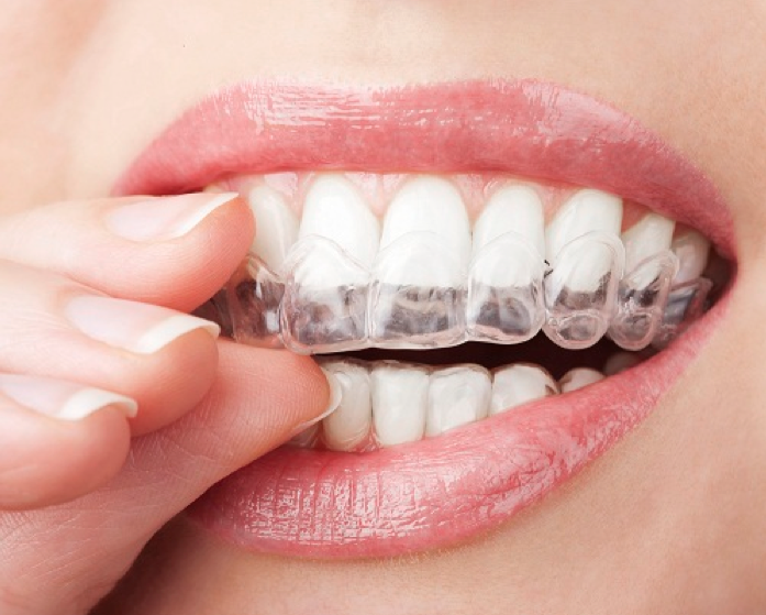 insurance cover Invisalign