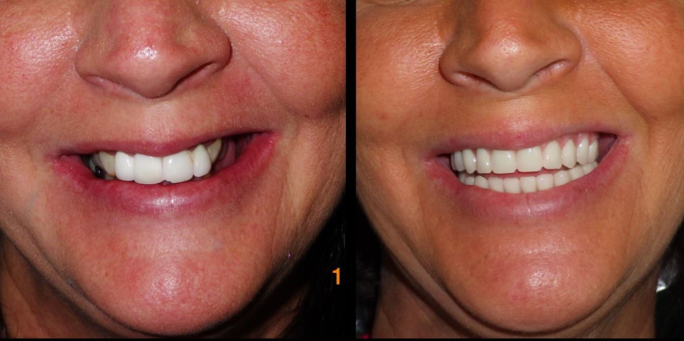 teeth in a day dental implants
