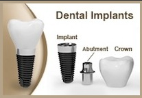 deltal dental insurance