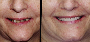 all on 4 dental implats before and after