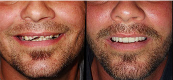 teeth in one day before and after